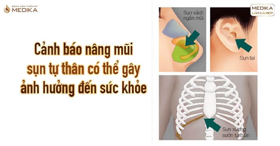 Cảnh báo nâng mũi sụn tự thân có thể gây ảnh hưởng đến sức khỏe tại Bệnh viện thẩm mỹ MEDIKA