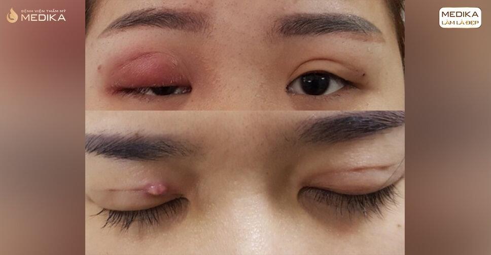 Cắt mí mắt hỏng TRỢN, SÂU, KHÔNG ĐIỀU có sửa được không?