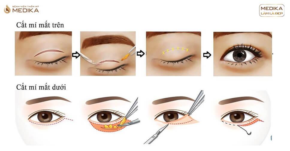 Công nghệ cắt mí mắt mới M-PLASTY tại MEDIKA