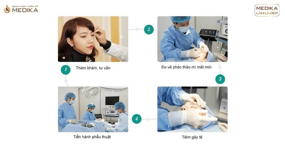 Giá tiền cắt mắt 2 mí siêu ưu đãi tại Bệnh viện MEDIKA
