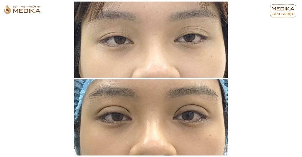 Kinh nghiệm đi cắt mí mắt CHIA SẺ trước & trong sau khi cắt