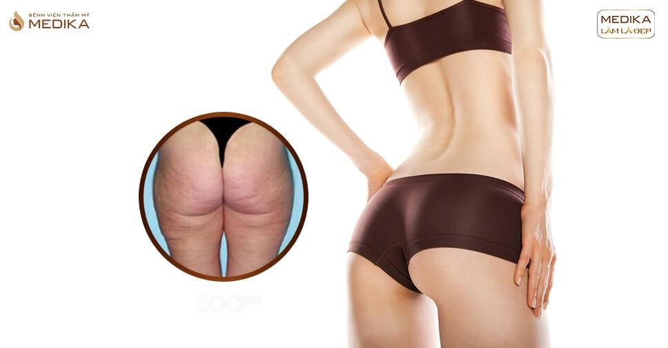 Kinh nghiệm nâng mông REVIEW nâng mông tại MEDIKA