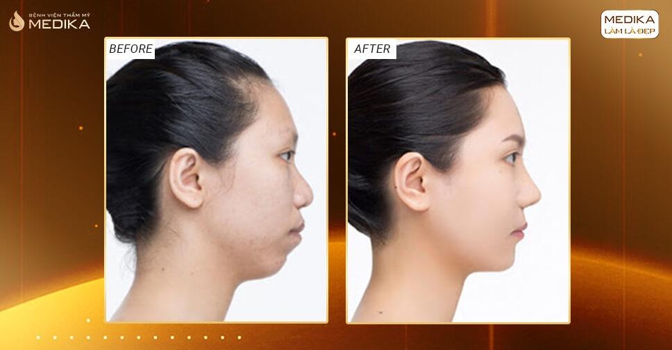 Nâng mũi cấu trúc phương pháp ấn định dáng mũi tuyệt vời ở Bệnh viện thẩm mỹ MEDIKA