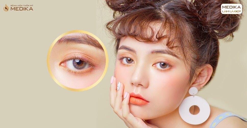Phẫu thuật mắt to giá bao nhiêu? 5 lưu ý khi thực hiện