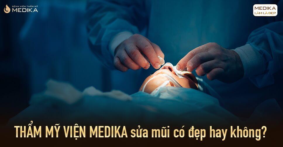 Thẩm mỹ viện MEDIKA sửa mũi có đẹp hay không?
