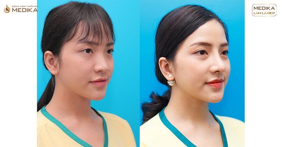 Tìm lại chiếc mũi đẹp sau biến chứng nhờ nâng mũi sụn tự thân ở Bệnh viện thẩm mỹ MEDIKA