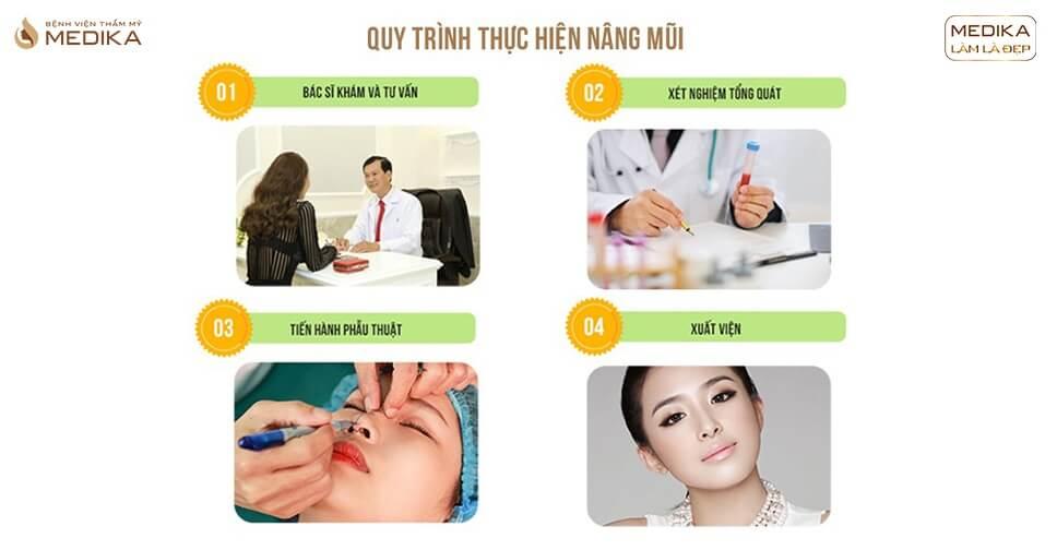 Trải nghiệm quy trình nâng mũi đẹp ở MEDIKA - Bệnh viện thẩm mỹ
