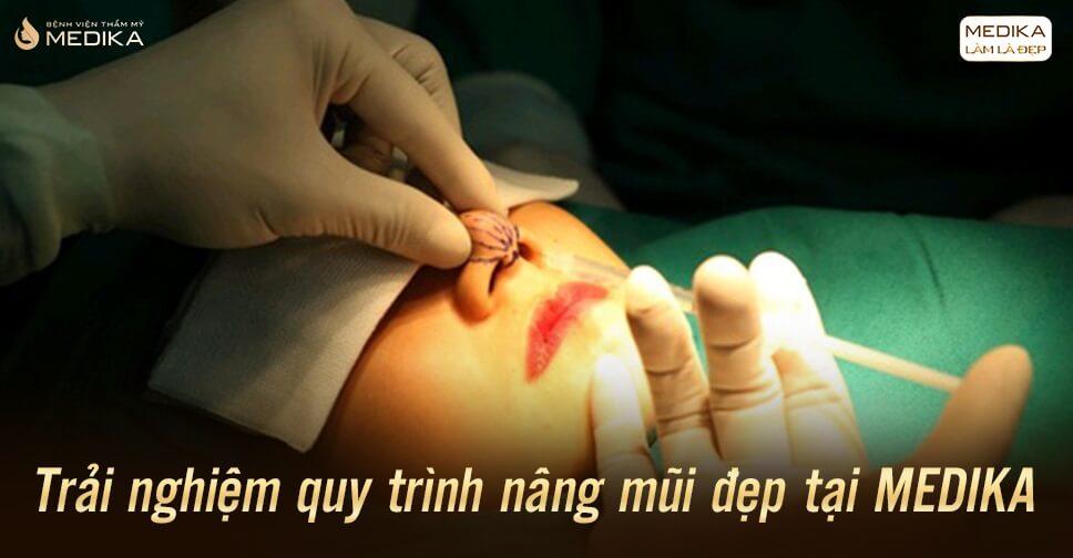 Trải nghiệm quy trình nâng mũi đẹp tại MEDIKA - Bệnh viện thẩm mỹ