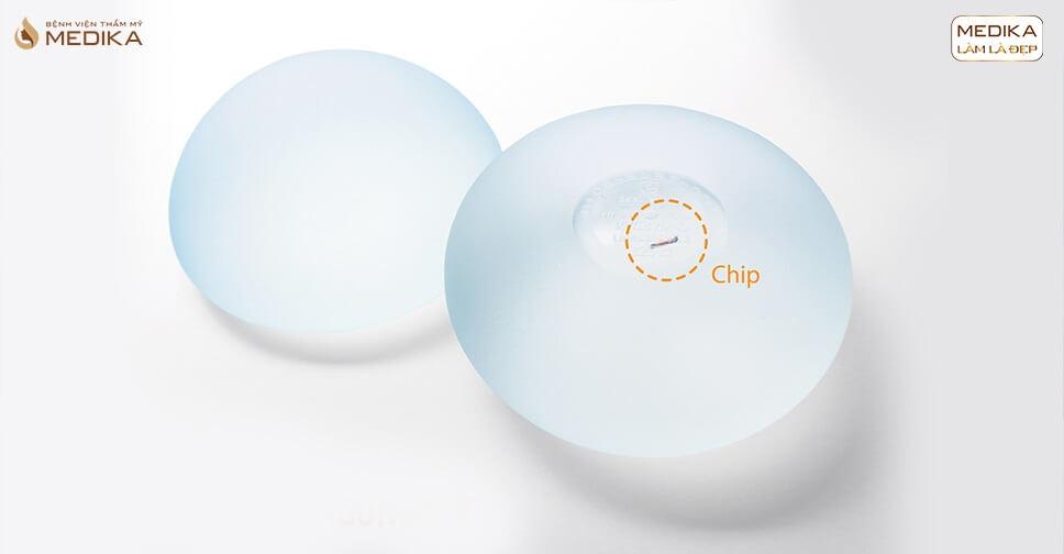 Túi Nano Chip ở MEDIKA được nhiều khách hàng tin tưởng chọn lựa ở Bệnh viện thẩm mỹ MEDIKA