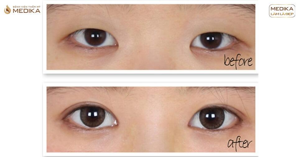 Bấm mí mắt có ảnh hưởng gì không? Chẳng hạn như sức khỏe?
