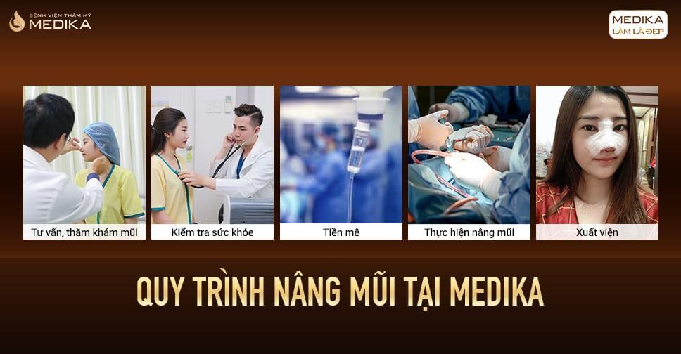 Bí quyết đạt hiệu quả tối ưu khi nâng mũi ở Bệnh viện thẩm mỹ MEDIKA