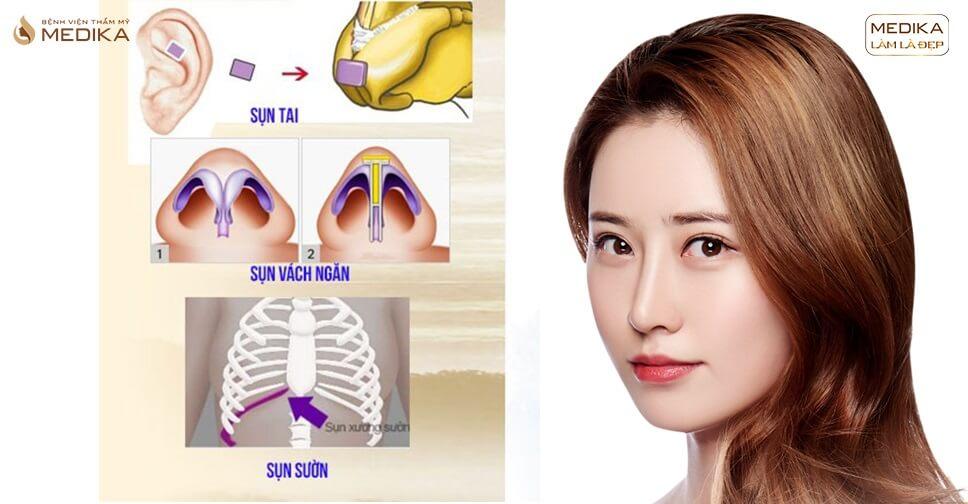 Bí quyết lựa chọn sụn phù hợp khi nâng mũi sụn tự thân ở Bệnh viện thẩm mỹ MEDIKA