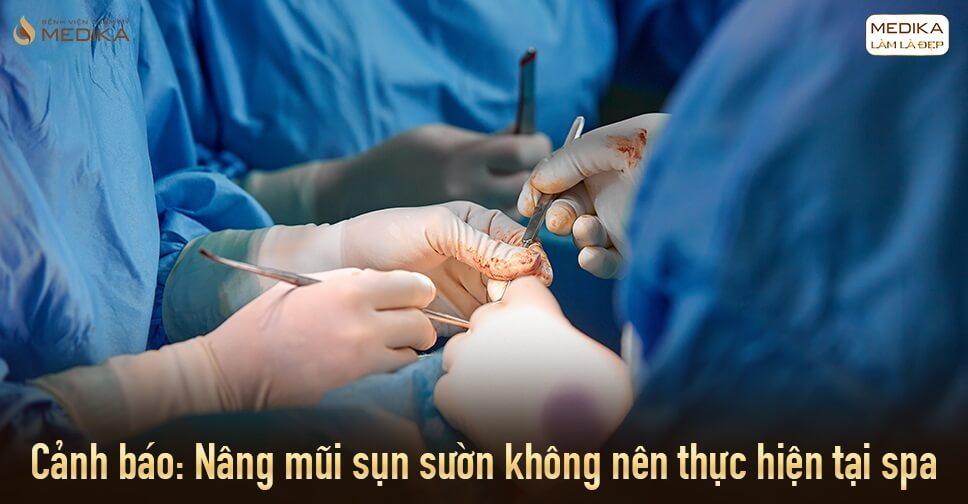 Cảnh báo nâng mũi sụn sườn không nên thực hiện ở Spa - Bệnh viện thẩm mỹ MEDIKA