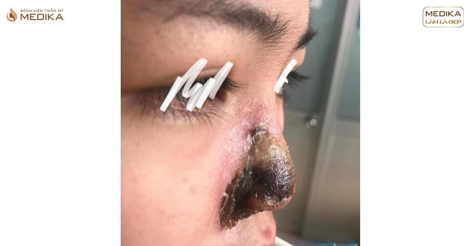 Cảnh báo những quảng cáo phẫu thuật nâng mũi an toàn ở Spa