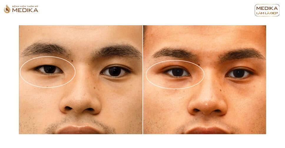 Cắt mắt 2 mí cho nam giới tự nhiên không dấu phẫu thuật