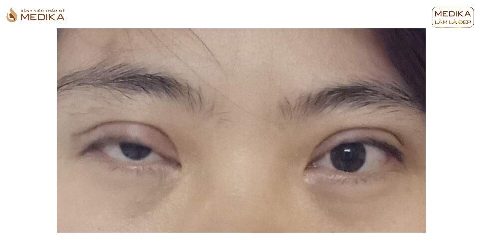 Cắt mí mắt quá dài bây giờ có KHẮC PHỤC được không?
