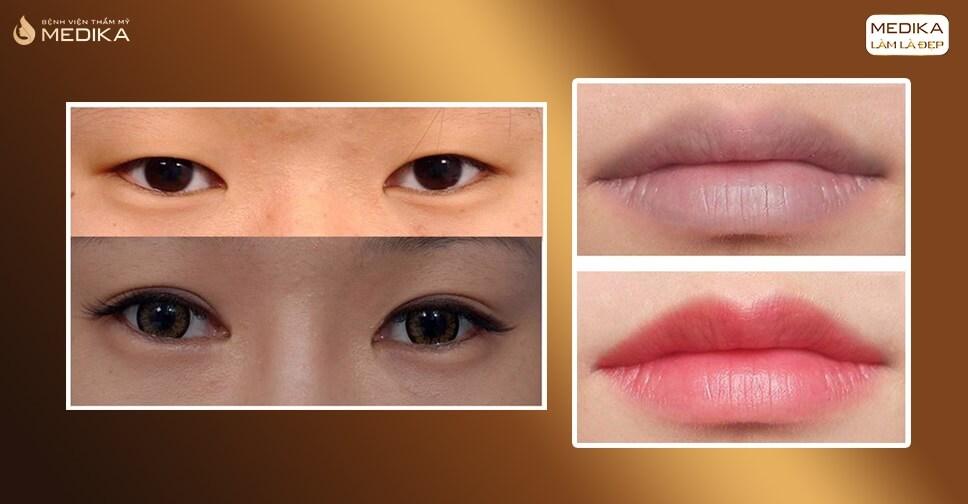 Cắt mí mắt xăm môi có được thực hiện cùng một lúc hay không?