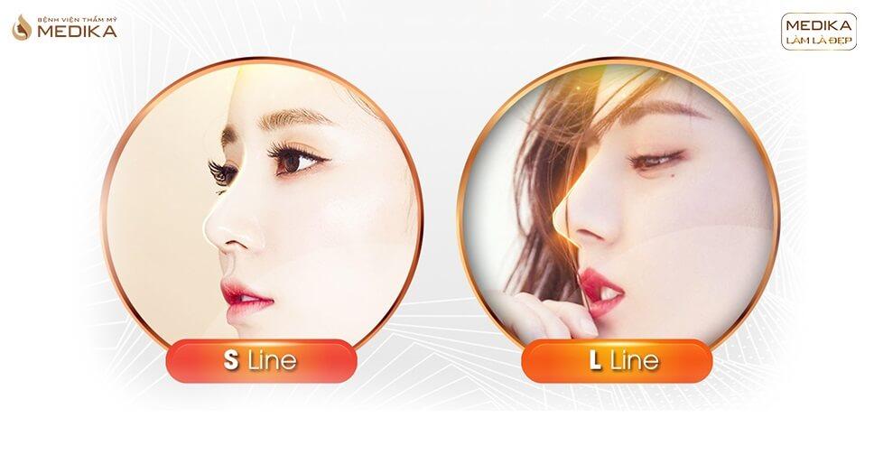 Có phải phái đẹp Á Đông chỉ nên chọn nâng mũi S line ở Bệnh viện thẩm mỹ MEDIKA?