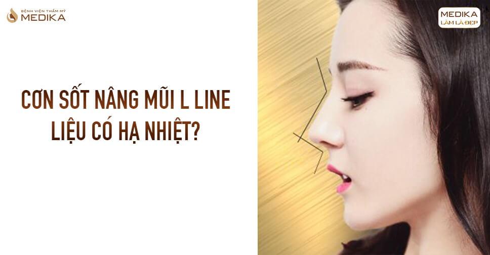 Cơn sốt nâng mũi L line liệu có hạ nhiệt tại Bệnh viện thẩm mỹ MEDIKA?