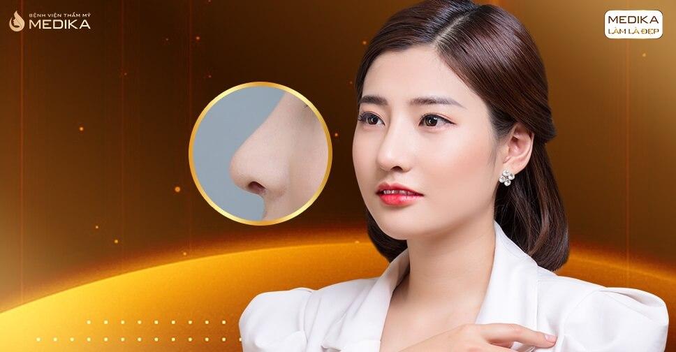 Gợi ý phương pháp nâng mũi an toàn chuyên gia khuyên dùng ở Bệnh viện thẩm mỹ MEDIKA