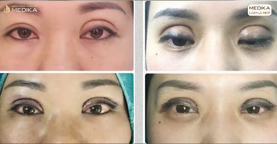 Hậu quả bấm mí mắt | LỜI CẢNH BÁO chọn lọc cơ sở thực hiện