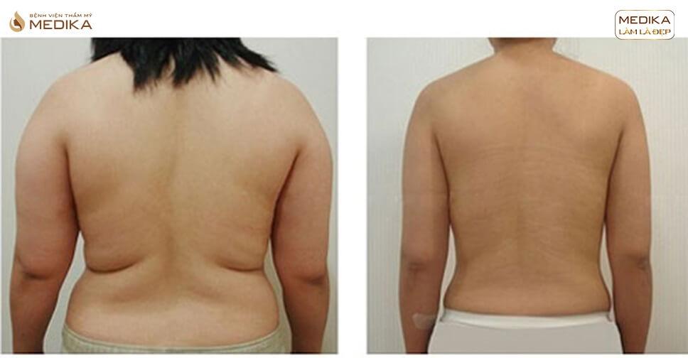Hút mỡ vùng lưng có kết hợp với hút mỡ bụng được không?