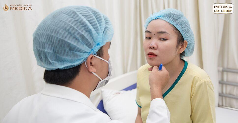 Lí giải những vấn đề mũi gặp phải sau nâng mũi bọc sụn ở Bệnh viện thẩm mỹ MEDIKA