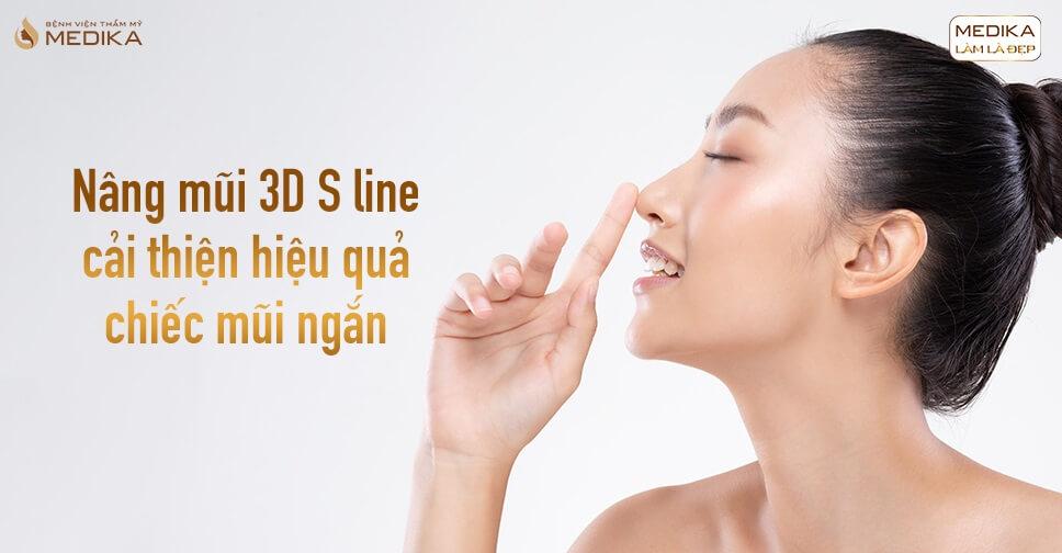 Nâng mũi 3D s line cải thiện hiệu quả chiếc mũi ngắn tại Bệnh viện thẩm mỹ MEDIKA