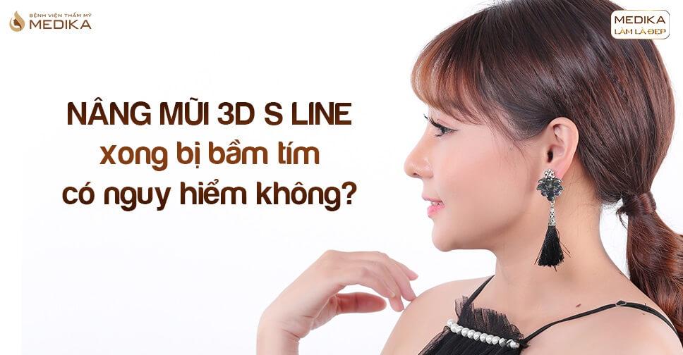 Nâng mũi 3D s line xong bị bầm tím có nguy hiểm không tại Bệnh viện thẩm mỹ MEDIKA?