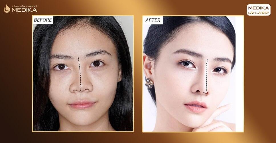 Nâng mũi bị lệch vẹo và cách khắc phục từ chuyên gia ở Bệnh viện thẩm mỹ MEDIKA