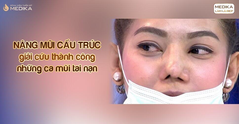 Nâng mũi cấu trúc giải cứu thành công những ca mũi tai nạn tại Bệnh viện thẩm mỹ MEDIKA
