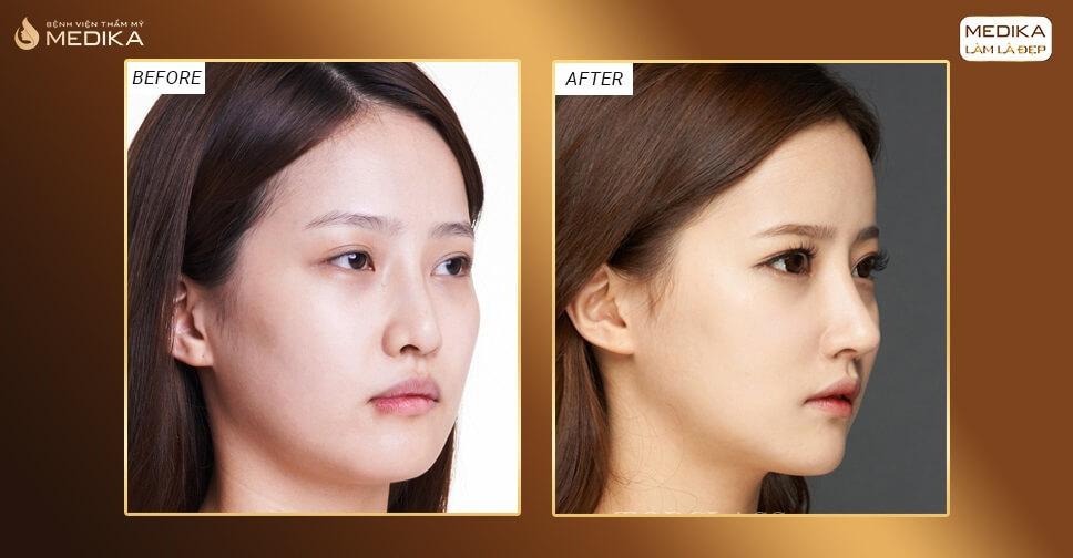 Nâng mũi Hàn Quốc dáng mũi được ưa chuộng 2020 ở Bệnh viện thẩm mỹ MEDIKA