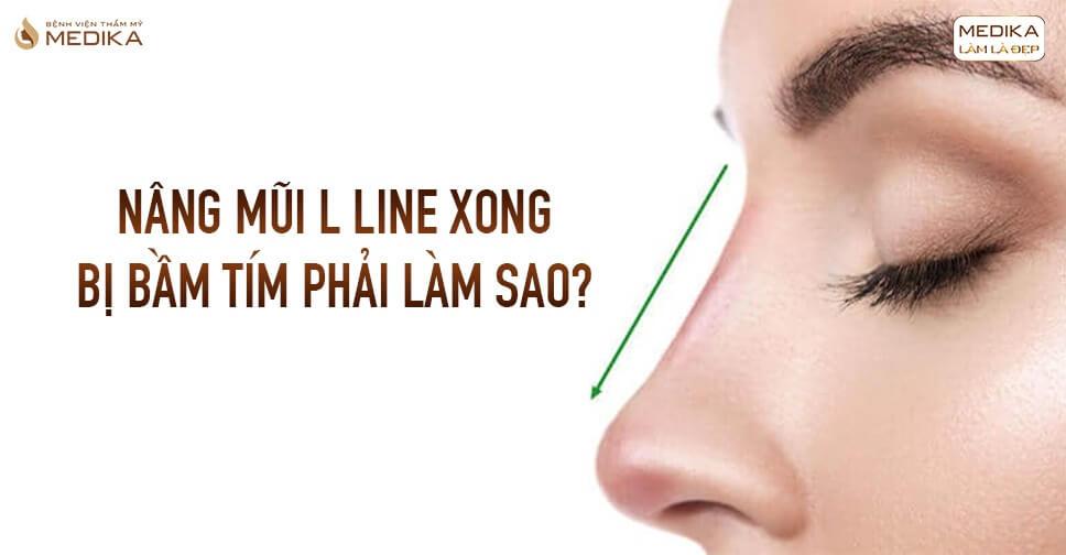 Nâng mũi L line xong bị bầm tím phải làm sao tại Bệnh viện thẩm mỹ MEDIKA?
