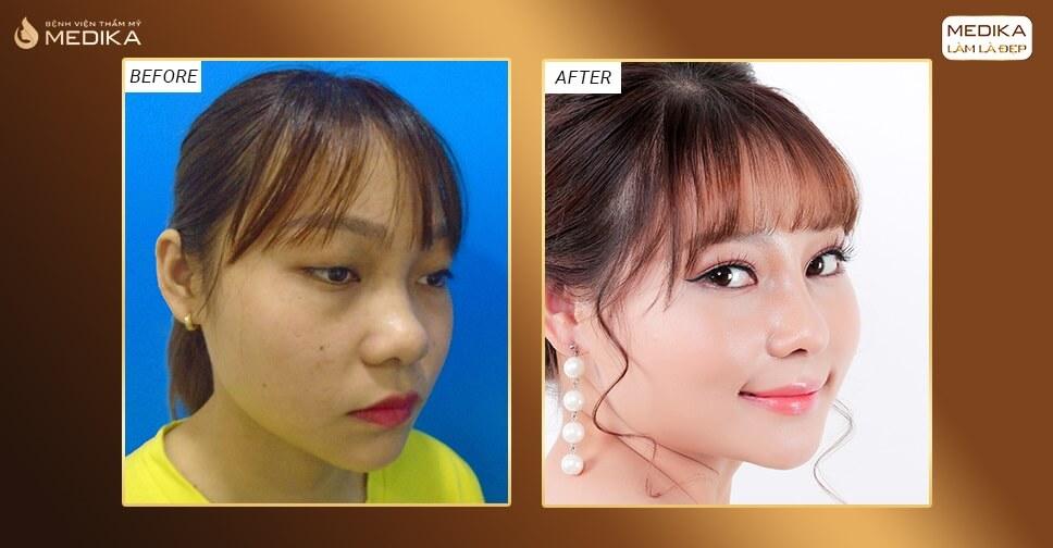 Nâng mũi S Line vẻ đẹp đậm chất Châu Á ở Bệnh viện thẩm mỹ MEDIKA