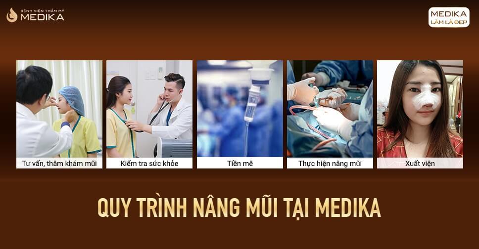 Nâng mũi sụn sườn có nguy hiểm như chị em nghĩ ở Bệnh viện thẩm mỹ MEDIKA?