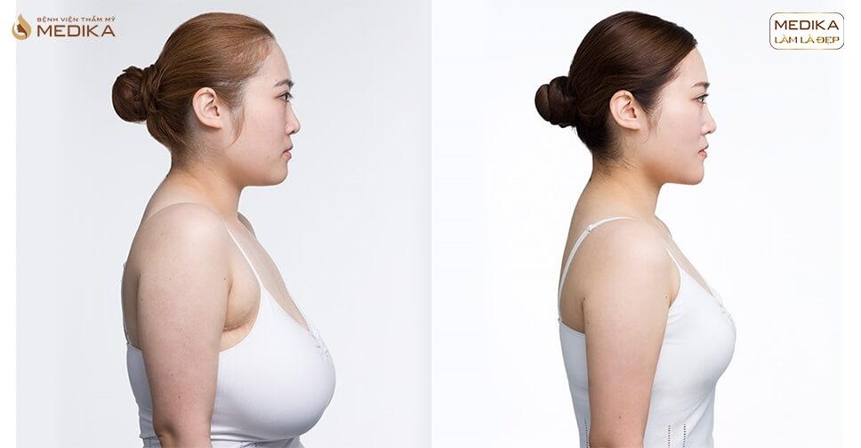 Nâng ngực chảy xệ khó hơn so với nâng ngực thông thường ở Bệnh viện thẩm mỹ MEDIKA?