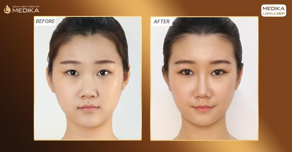 Nhấn mí mắt tự nhiên | Hình ảnh sau nhấn mí 2 tháng