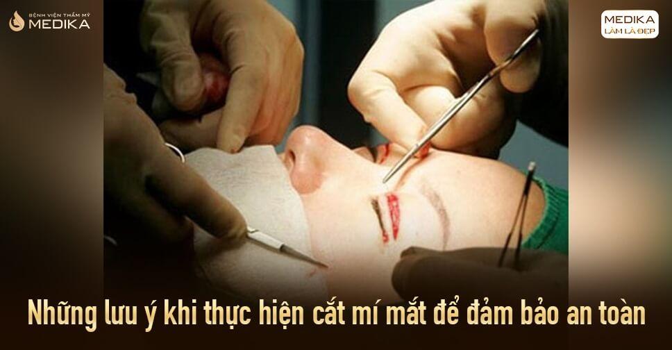 Những lưu ý khi cắt mí mắt để đảm bảo an toàn