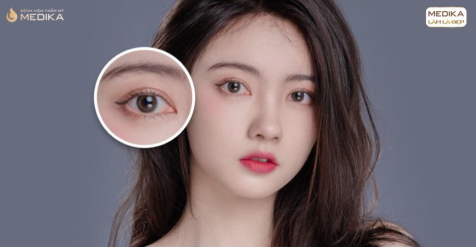 Phẫu thuật mắt to có an toàn không? Sau này có bị Ảnh hưởng gì không?