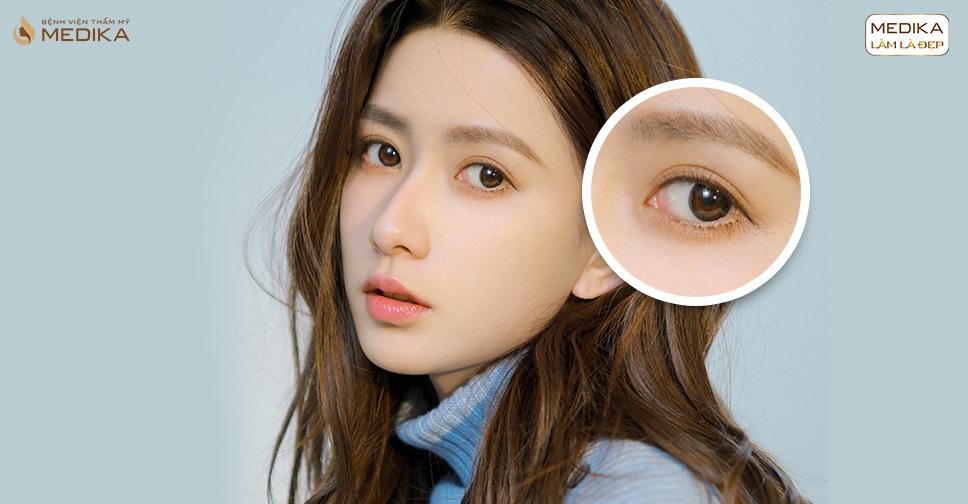 Phẫu thuật mắt to là kết hợp những công nghệ phẫu thuật gì?