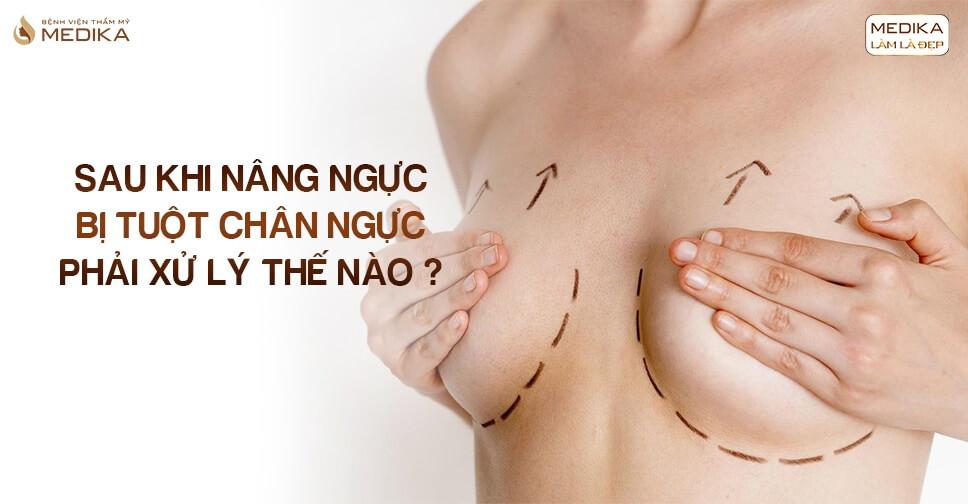 Sau khi nâng ngực bị tuột chân ngực phải xử lý như thế nào ở Bệnh viện thẩm mỹ MEDIKA?