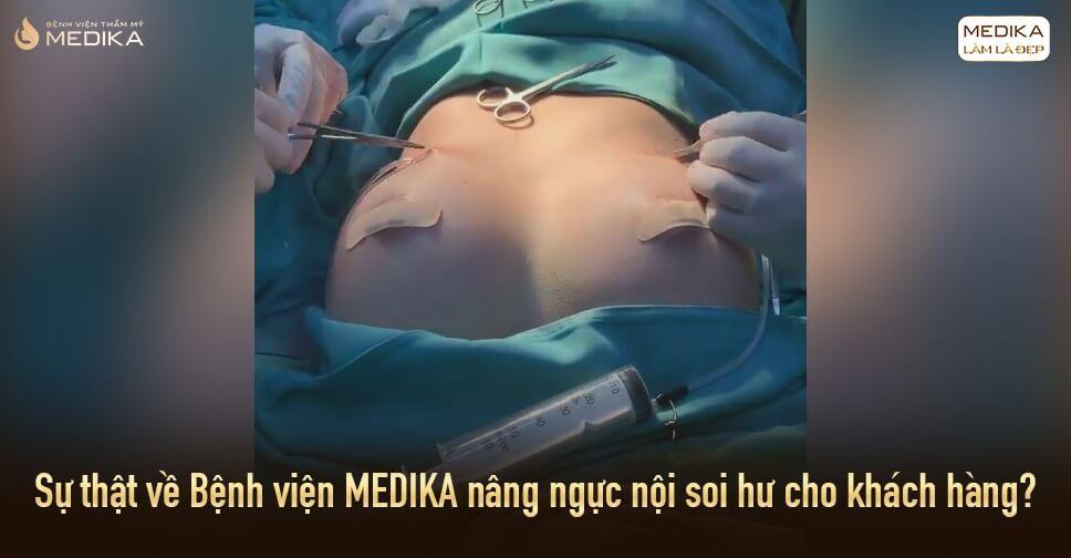 Sự thật tin đồn MEDIKA nâng ngực nội soi hư cho khách hàng ở Bệnh viện thẩm mỹ MEDIKA?