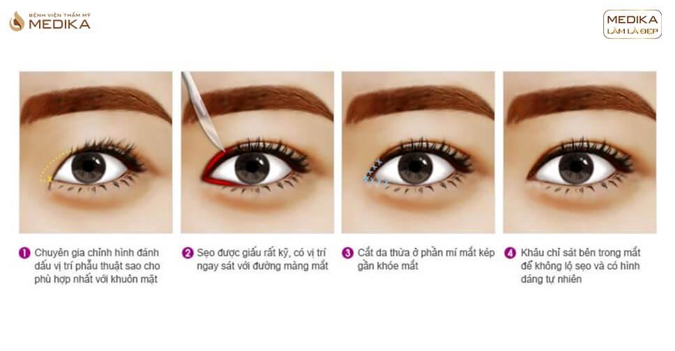Thẩm mỹ cắt mắt to | Câu chuyện bạn cần phải XEM