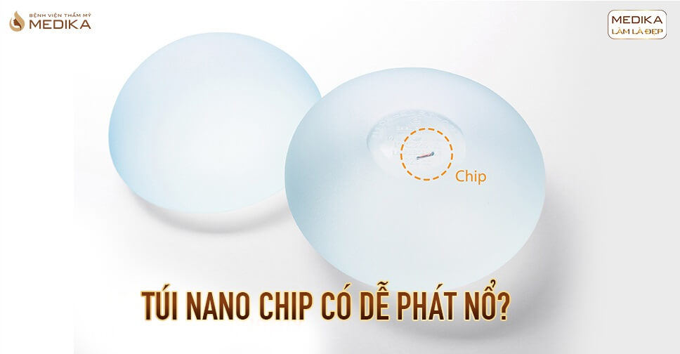 Túi Nano Chip có dễ phát nổ tại Bệnh viện thẩm mỹ MEDIKA?