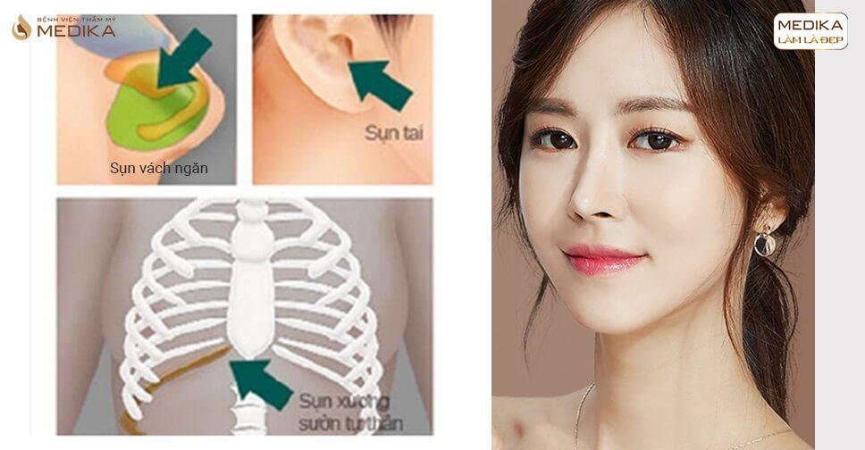 Bạn đã hiểu rõ về các loại sụn khi nâng mũi sụn tự thân bởi Bệnh viện thẩm mỹ MEDIKA