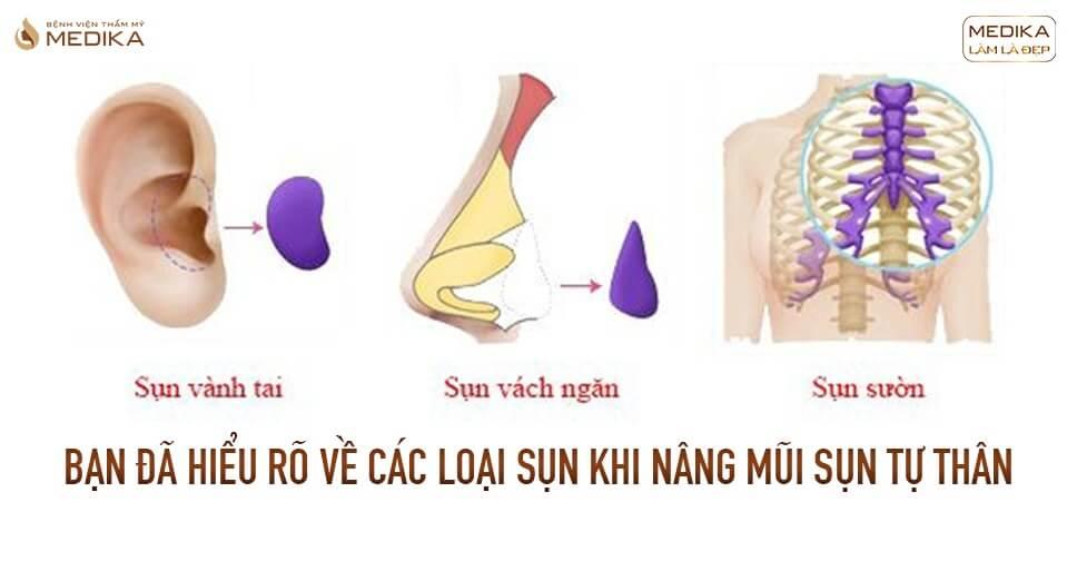 Bạn đã hiểu rõ về các loại sụn khi nâng mũi sụn tự thân từ Bệnh viện thẩm mỹ MEDIKA