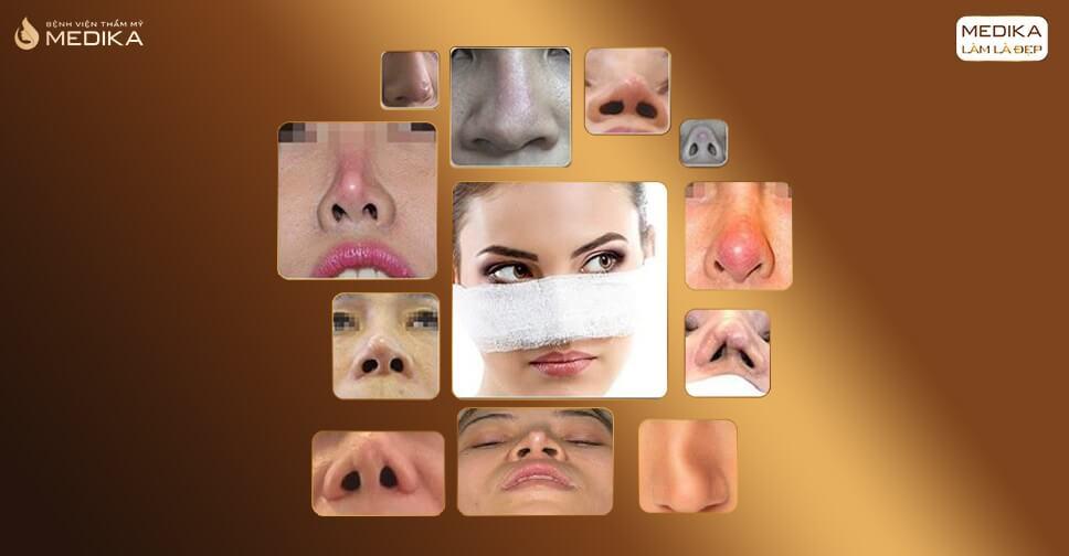 Biến chứng nâng mũi sụn nhân tạo và những điều bác sĩ cảnh báo bởi Bệnh viện thẩm mỹ MEDIKA