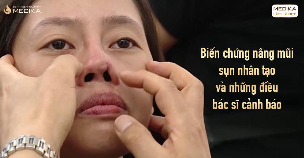 Biến chứng nâng mũi sụn nhân tạo và những điều bác sĩ cảnh báo từ Bệnh viện thẩm mỹ MEDIKA
