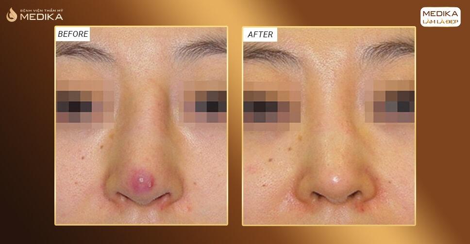Biến hóa ca mũi hỏng thành mũi đẹp nhờ nâng mũi cấu trúc bởi Bệnh viện thẩm mỹ MEDIKA