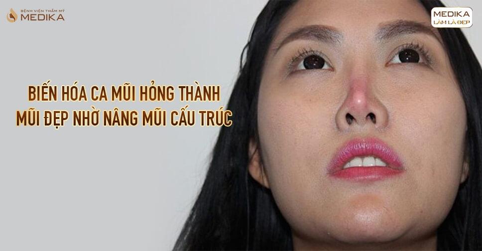 Biến hóa ca mũi hỏng thành mũi đẹp nhờ nâng mũi cấu trúc tại Bệnh viện thẩm mỹ MEDIKA